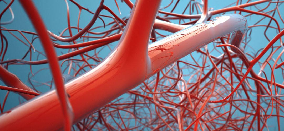 Érsebészet – Angiológia